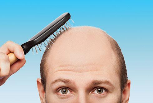 imaginé a un hombre con alopecia